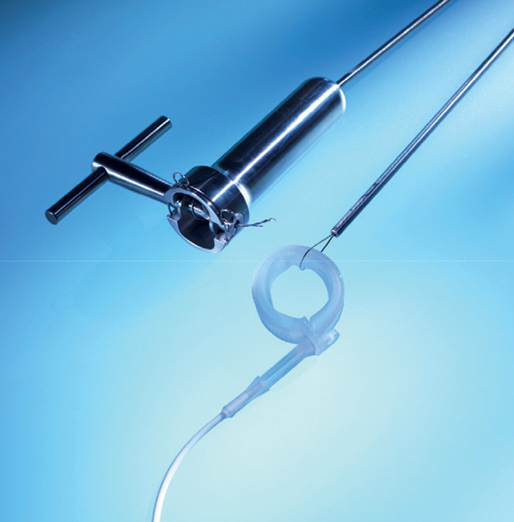 GASTRIC BAND ENDOSCOPIC REMOVAL KIT
