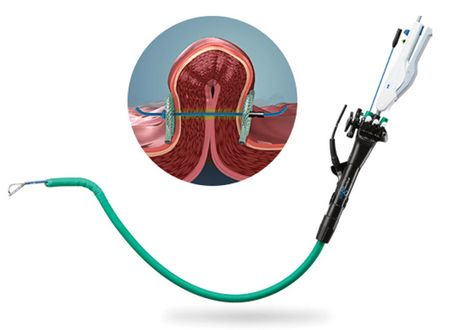 ENDOSCOPIC GASTRIC PLICATION WITH POSE® SYSTEM