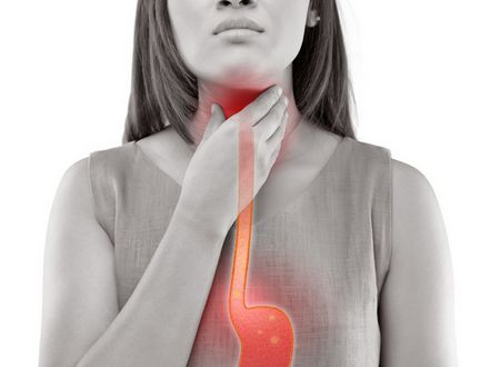 TREATMENTS FOR GASTROESOPHAGEAL REFLUX
